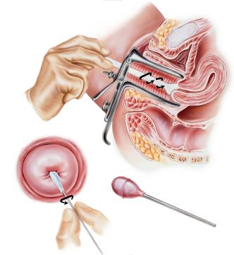 gravid vondt nederst i magen tørre slimhinner i underlivet